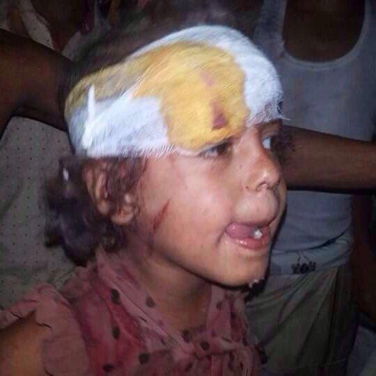 Saudi Air Force Struck Yemen's City of Al Hudaydah: 25 Killed, 76 Wounded (Photos 18+)