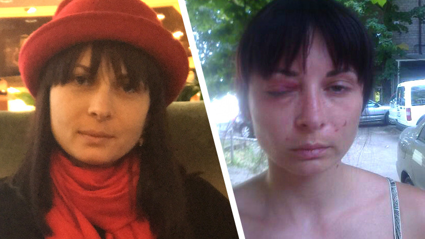 """Torture in Ukraine: Who will talk about the abuse of a """"Russian saboteur"""""""