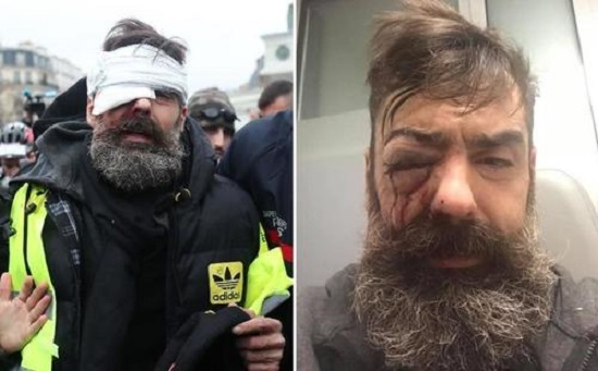 """Yellow Vest Organizer """"Handicapped For Life"""" By French Riot Police: Lawyer"""