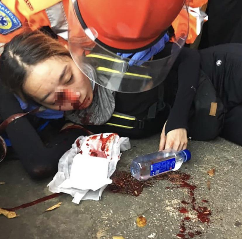 Protests In Hong Kong Continue With Increasing Violence And Casualties