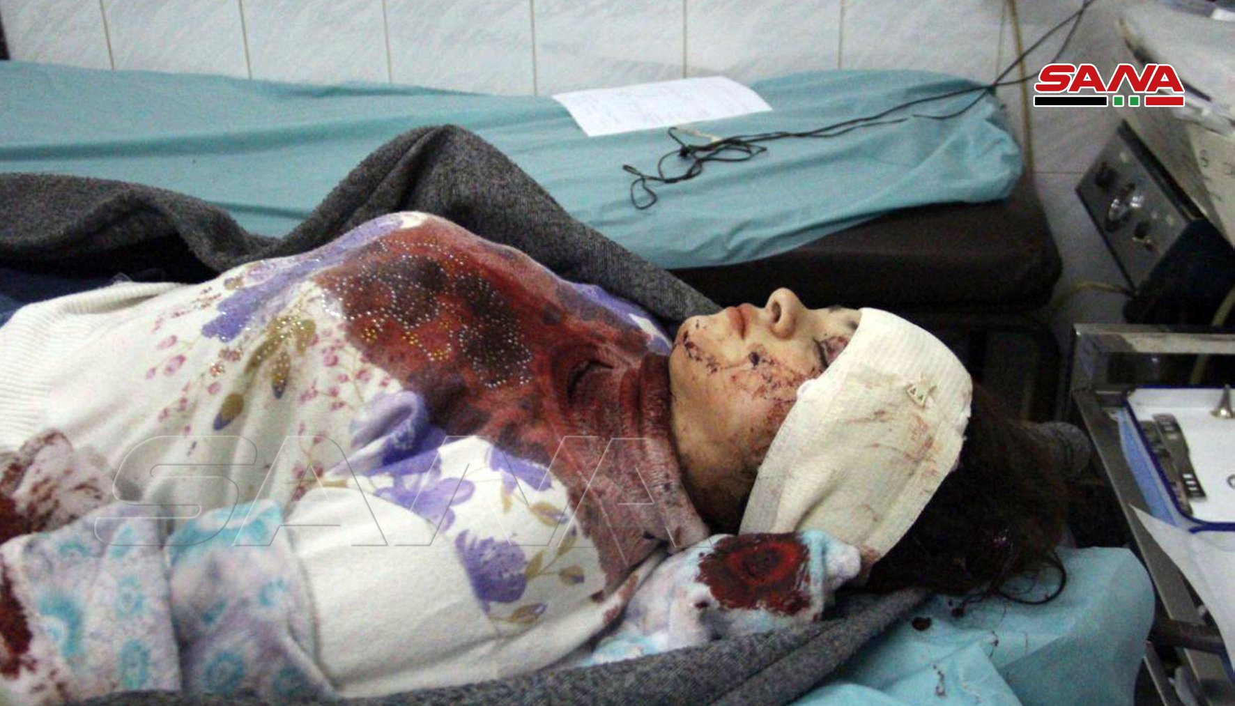 New Rocket Attack Injures Several Civilians In Aleppo City (Photos)