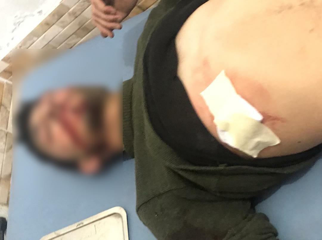 Turkish Shelling Kills, Injures Syrian Service Members In Al-Hasakah (Photos)