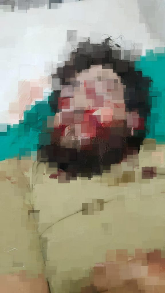 Commander Of Sham Legion Assassinated In Syria's Aleppo Province (Map Update)